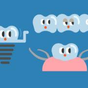 歯の抜けた顎の治療オプション
