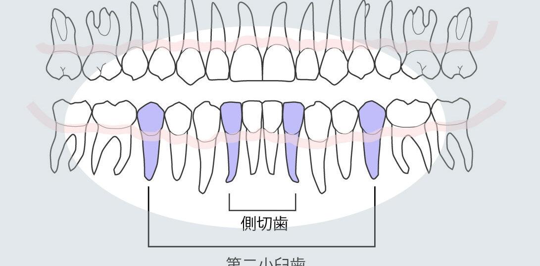 永久歯先天性欠如好発部位